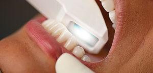 Dental Impressions the Easy Way